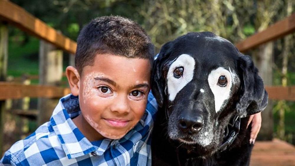 L' amicizia tra un bambino e un cane affetti da vitiligine
